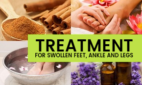 Treatment for swollen feet and legs.
