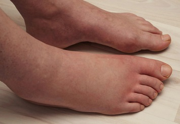 puffy, reddish, painful feet