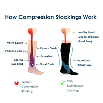 picture-of-feet-with-and-without-compression-stockings