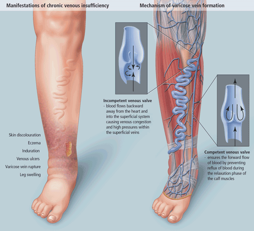 different medical conditions of foot like edema, varicose veins