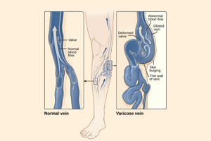 picture-of-two-feet-one-with-normal-veins-other-with-varicose-vein