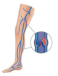 Deep Vein Thrombosis (DVT) in human leg