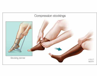 picture-of-people-wearing-compression-socks