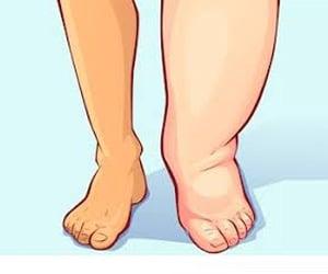 Comparison between leg