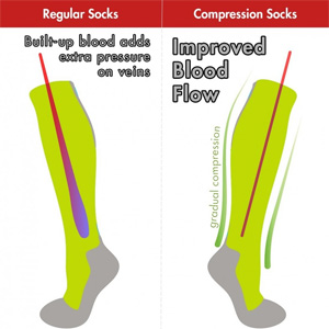 picture demonstrating difference between regular and compression socks showing improved blood flow