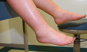 edema feet