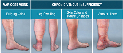 chronic veinous insufficiency