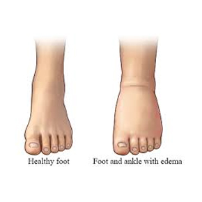 healthy foot vs edema foot