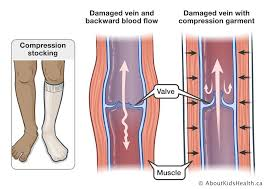 illustrated picture of venous system in human feet showing healthy impact of compression stockings