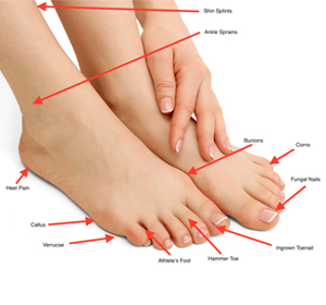 picture of multiple foot problems such as bunions, hammertoes, warts