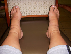 picture of a  swollen feet elevated on a chair