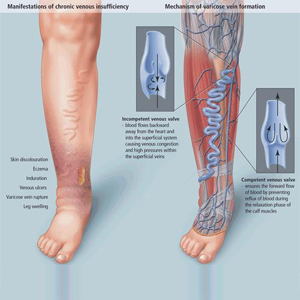 mechanism of varicose veins formation