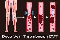 demonstration of deep vein thrombosis