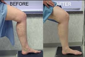 picture of an old patient after surgery with and without compression socks, after surgery.