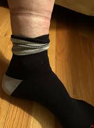 person having marks on legs after putting off socks