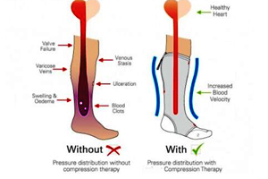illustration showing comparison of two feet to explain benefits of compression socks, increased blood flow, reduce blood clots, reduce swelling in feet.