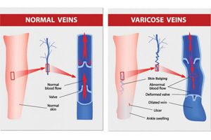 illustrated picture showing difference between normal veins and varicose veins