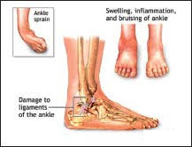 picture of injured toes and sprained ankles showing inflammation and damage to muscles and tissue