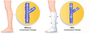 illustrated picture showing comparison of leg with and without compression therapy