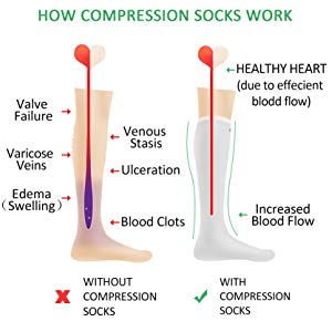 An illustration of how maternity compression knee-high socks eliminate edema