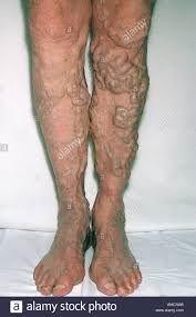 Bilateral Varicose Veins