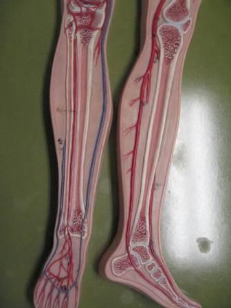 Compression stockings can help prevent blood clots