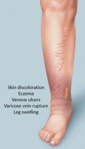 picture to demonstrate various leg disorders