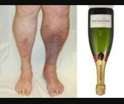 Champagne bottle legs