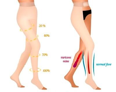 How do Women Compression Hose Work for varicose veins