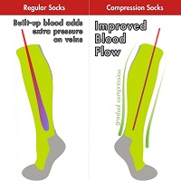 An illustration of how compression socks improve blood flow in comparison to a normal socks
