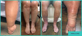 Compression Technology Reduces Swelling
