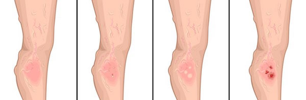 Stages of Deep Vein Thrombosis
