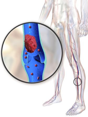DVT can be prevented with 20-30mmHG compression socks