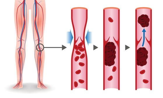 Deep Vein Thrombosis issues