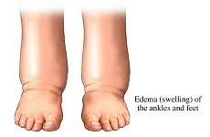 Ankle and feet edema