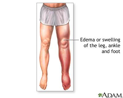 Edema Leading to Swelling of Leg, Ankle and Foot in Men