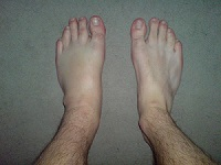 Edema in the leg - Swollen Foot