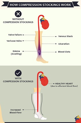 How compression stocking works
