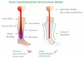 Swollen feet with compression stocking