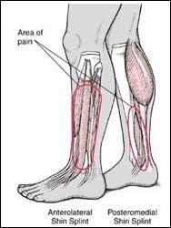 For Treating Shin Splints