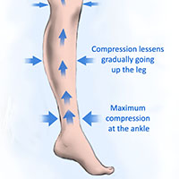 how compression socks work for athletes