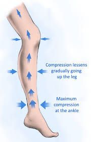 How Graduated compression stockings work