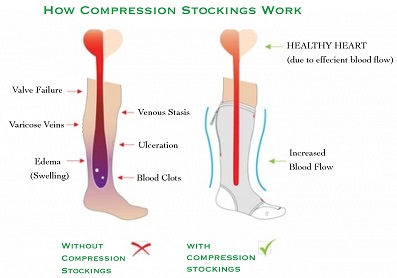 picture demonstrating how compression hosiery works?