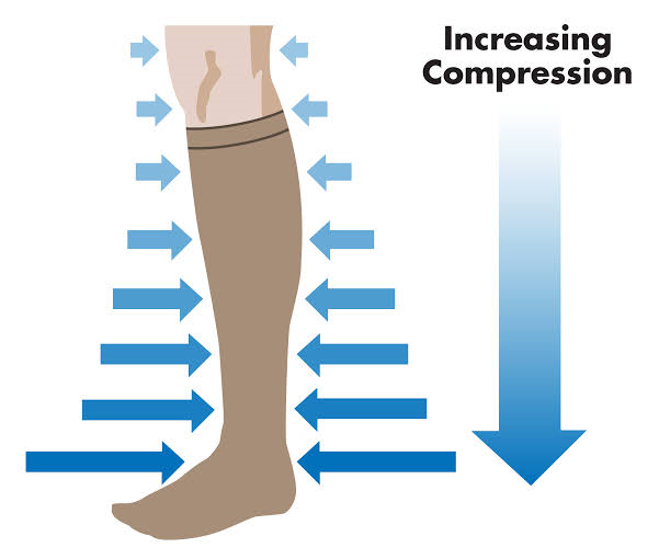 Illustration Showing Graduated Compression
