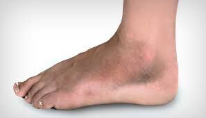 Kidney Problems Cause Swollen Ankles and Legs