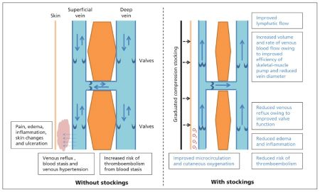 Mechanisms of the Action of Graduated Compression Socks