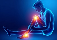 Areas of pain and soreness because of intense workouts without leg compression sleeves