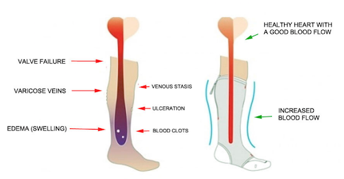 Graphic of feet explaining blood circulation
