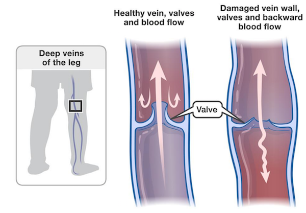 Healthy vs unhealthy vein, valves, and blood flow