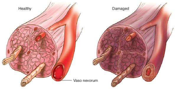Healthy vs Damaged nerves